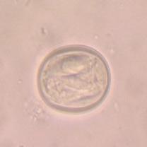 消化管内寄生虫3