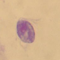 消化管内寄生虫4
