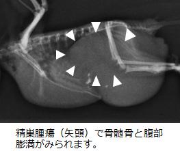 精巣腫瘍2